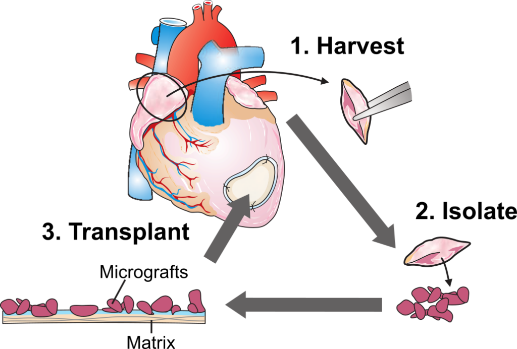 Graphics of the coronary artery bypass grafting (CABG) surgery.