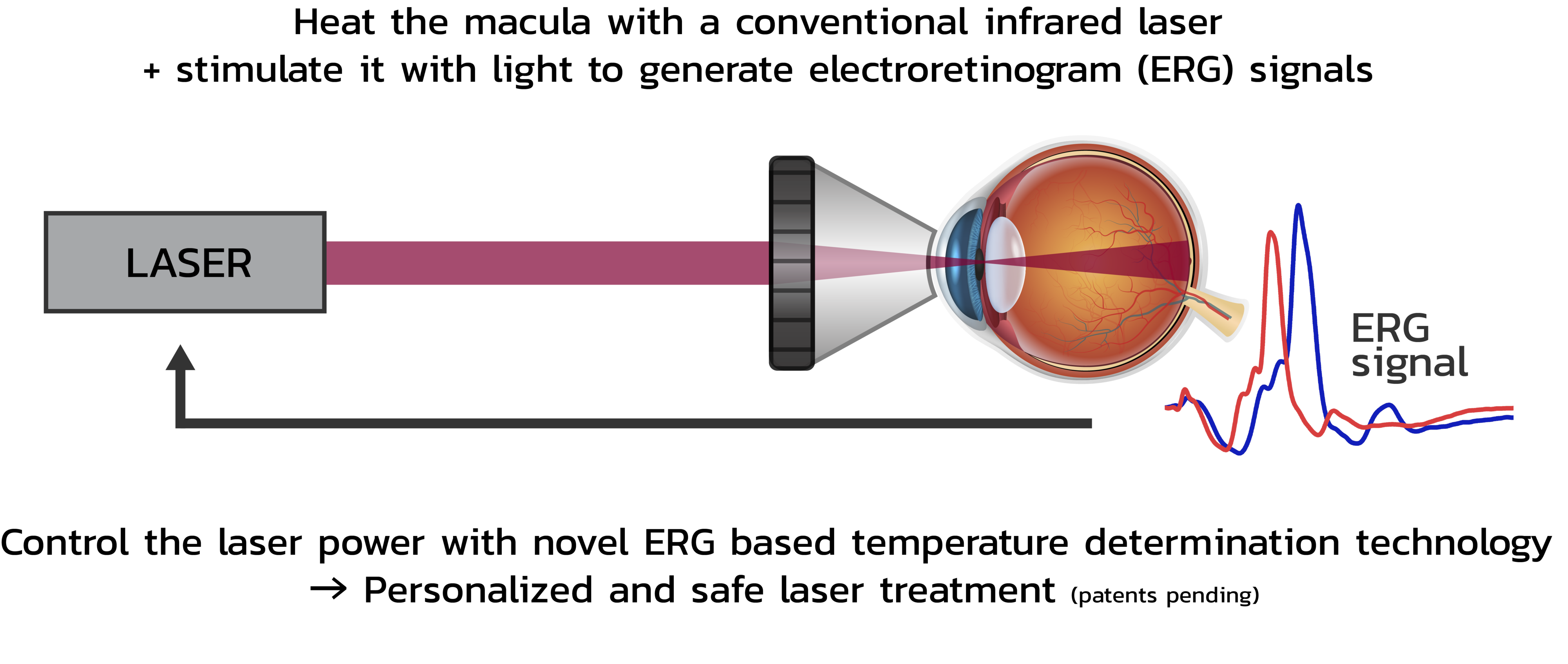 Graphics of non-damaging laser treatments.